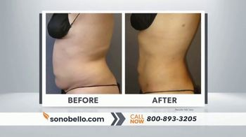 Sono Bello Sizzling Summer Special TV Spot, 'Two Free Cellulite Reduction Treatments' - Thumbnail 3
