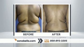 Sono Bello Sizzling Summer Special TV Spot, 'Two Free Cellulite Reduction Treatments' - Thumbnail 6