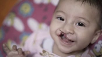Operation Smile TV Spot, 'Every Child is Beautiful' - Thumbnail 1