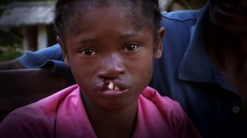 Operation Smile TV Spot, 'Every Child is Beautiful' - Thumbnail 5