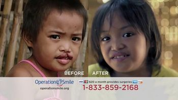 Operation Smile TV Spot, \'Every Child is Beautiful\'