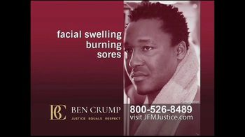 Ben Crump Law TV Spot, 'Chemical Burns'