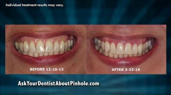 Chao Pinhole Surgical Technique TV Spot, 'Be Proud of Your Smile' - Thumbnail 3