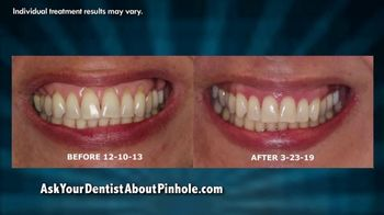 Chao Pinhole Surgical Technique TV Spot, 'Be Proud of Your Smile' - Thumbnail 4