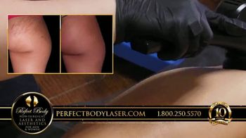Perfect Body Laser and Aesthetics TV Spot, 'Hace 10 años' [Spanish] - Thumbnail 3