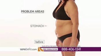 Sono Bello TV Spot, 'Remove Body Fat Permanently in One Visit: $250 Off' - Thumbnail 2