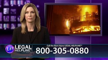 Legal Help Line TV Spot, 'Burn Injury'