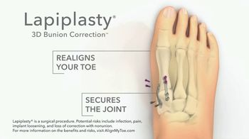 Treace Medical Concepts Lapiplasty TV Spot, 'Perspectives: Outdoors'
