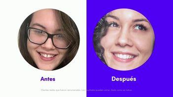 Smile Direct Club TV Spot, 'Menos de $3 dólares al día' [Spanish]