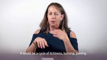 AbbVie TV Spot, 'Eczema HQ: Relatable Skin Stories' - Thumbnail 6