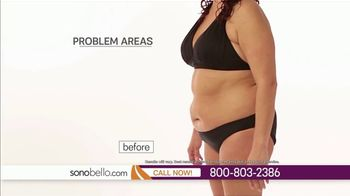 Sono Bello TV Spot, 'Body Fat Removal: One Area Free' Ft. Dr. Andrew Ordon