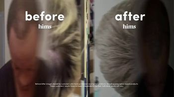 Hims TV Spot, 'Before and After' - Thumbnail 4