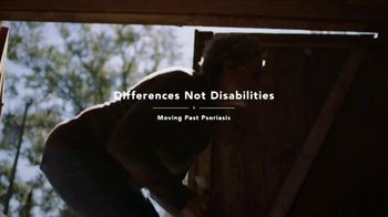 Novartis TV Spot, 'Differences Not Disabilities: Moving Past Psoriasis'