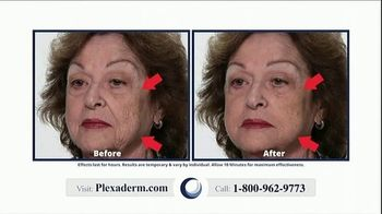 Plexaderm Skincare TV Spot, 'Just Ten Minutes: 50 Percent Off' - Thumbnail 2