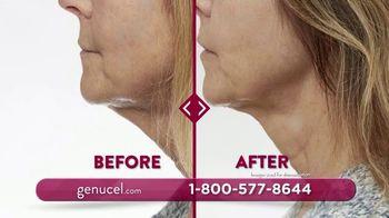 Chamonix Skin Care Genucel Jawline Treatment TV Spot, 'Make Them Dissapear' - Thumbnail 5