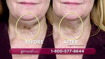 Chamonix Skin Care Genucel Jawline Treatment TV Spot, 'Make Them Dissapear' - Thumbnail 6