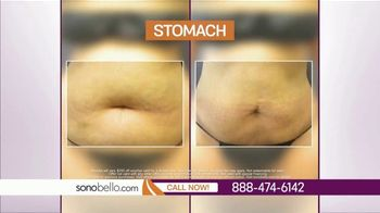 Sono Bello TV Spot, 'Body Fat Removal: Save $250' Featuring Dr. Andrew Ordon - Thumbnail 9
