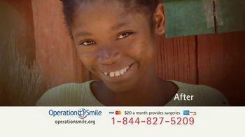 Operation Smile TV Spot, 'This Little Light' - Thumbnail 6