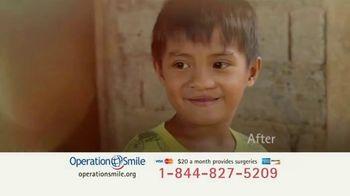 Operation Smile TV Spot, 'This Little Light' - Thumbnail 7