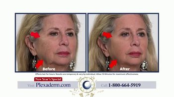 Plexaderm Skincare New Year's Special TV Spot, 'Hosts: 50% Off' - Thumbnail 5