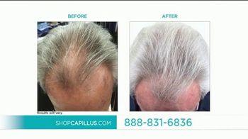 Capillus Black Friday Sale TV Spot, 'Treat Hair Loss at Home' - Thumbnail 7