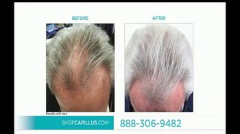 Capillus Sitewide Sale TV Spot, 'Treat Hair Loss at Home' - Thumbnail 7