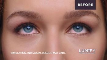 Lumify Redness Reliever Eye Drops TV Spot, 'Drop Everything' - Thumbnail 5