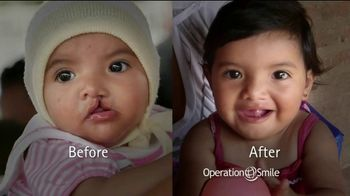 Operation Smile TV Spot, 'Every Child Is Precious' Ft. Roselyn Sanchez - Thumbnail 9