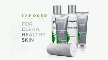 Exposed Skin Care TV Spot, 'Reveal Your Healthy Skin' - Thumbnail 3