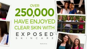 Exposed Skin Care TV Spot, 'Reveal Your Healthy Skin' - Thumbnail 7