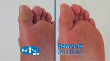 Pedi Vac TV Spot, 'Remove Calluses' - Thumbnail 3