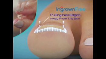 Ingrown Free TV Spot, 'Gently Relieves Pain'