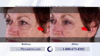 Plexaderm Skincare Rapid Reduction Cream Plus TV Spot, 'Feel the Best' - Thumbnail 9