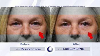 Plexaderm Skincare Rapid Reduction Cream Plus TV Spot, 'Feel the Best' - Thumbnail 3