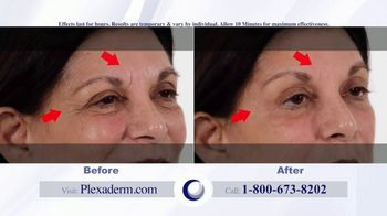Plexaderm Skincare Rapid Reduction Cream Plus TV Spot, 'Feel the Best' - Thumbnail 4