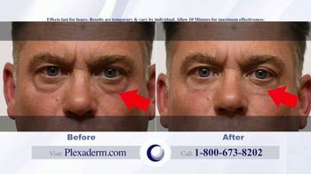 Plexaderm Skincare Rapid Reduction Cream Plus TV Spot, 'Feel the Best' - Thumbnail 7