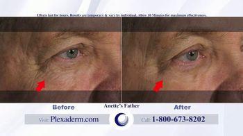 Plexaderm Skincare Rapid Reduction Cream Plus TV Spot, 'Feel the Best' - Thumbnail 8