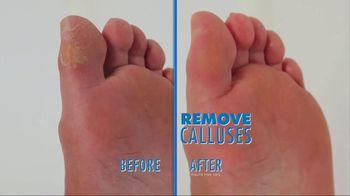 PediVac TV Spot, 'Remove Calluses: Foot Repair Cream'