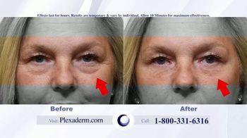 Plexaderm Skincare Rapid Reduction Cream Plus TV Spot, 'Hottest Videos' - Thumbnail 2