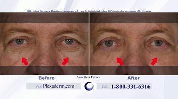 Plexaderm Skincare Rapid Reduction Cream Plus TV Spot, 'Hottest Videos' - Thumbnail 4