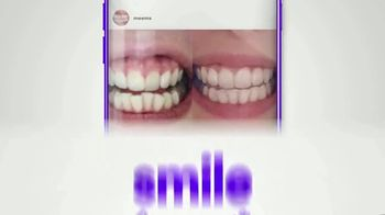 Smile Direct Club TV Spot, 'Meet Amanda. She Was a Smile Hider.' - Thumbnail 10