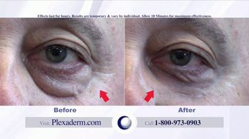 Plexaderm Skincare Rapid Reduction Cream Plus TV Spot, 'Fountain of Youth' - Thumbnail 1