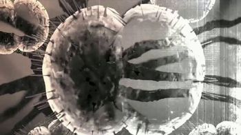 Voices of Meningitis TV Spot, 'Casual Sharing' - Thumbnail 4