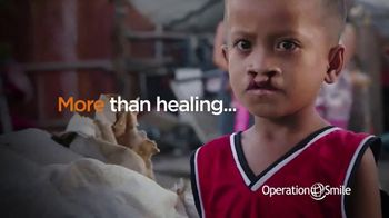Operation Smile TV Spot, 'Second Chance' - Thumbnail 5