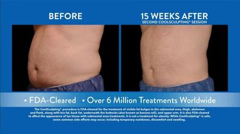 CoolSculpting TV Spot, 'Lose Fat on the Golf Course' Feat. Ian Poulter - Thumbnail 6