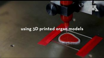 University of Minnesota TV Spot, 'Using 3D Printing to Better Prepare Physicians for Surgery' - Thumbnail 5
