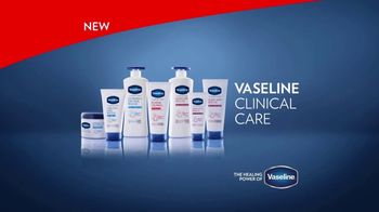 Vaseline Clinical Care Extremely Dry Skin Rescue TV Spot, 'What Healed Skin Can Do' - Thumbnail 9