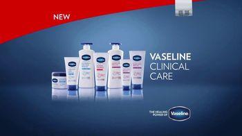 Vaseline Clinical Care TV Spot, 'Gymnast' - Thumbnail 10