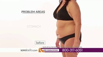 Sono Bello TV Spot, 'Stubborn Belly Fat: Employee Only Pricing' - Thumbnail 2