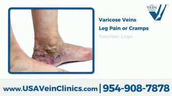 USA Vein Clinics TV Spot, 'Not Just a Cosmetic Problem: Virtual Consultation' - Thumbnail 2